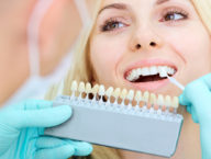 What to Know Before Getting a Dental Implant Summerlin